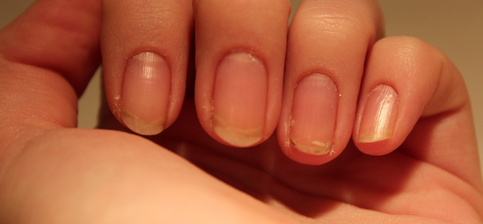 Расслоение ногтей причина и лечение фото