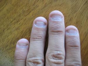 вот так выглядят обгрызенные ногти