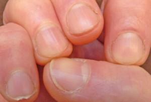 как выглядят обгрызанные ногти